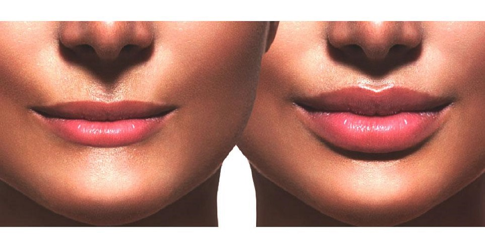 make your lips bigger than now